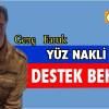 """""""YÜZ NAKLİ İÇİN DESTEK BEKLİYOR"""""""